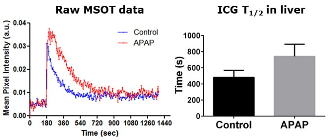 Impaired hepatic clearance of ICG in the liver quantified by MSOT.