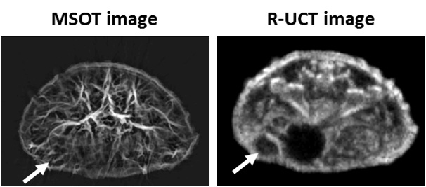 Cross-sectional MSOT and R-UCT image of a tumor-bearing mouse.